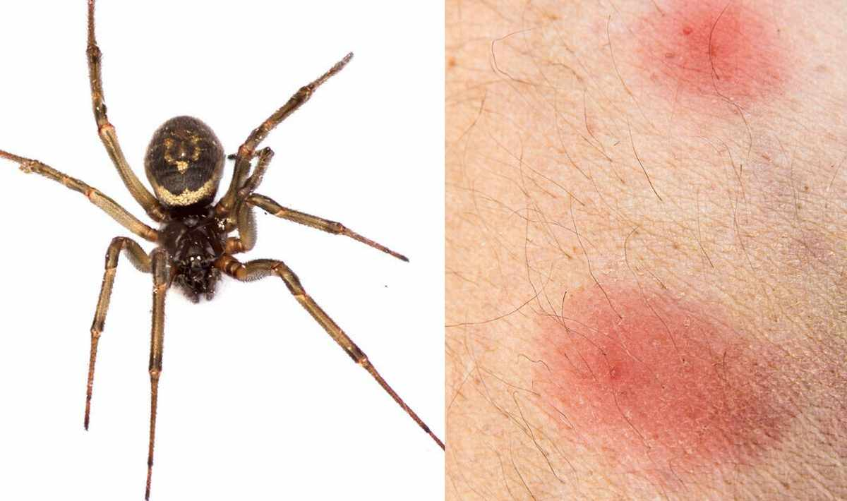what does a spider bite look like