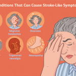 signs of mini stroke