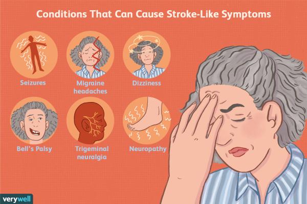signs of mini stroke