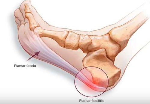 left foot pain ICD 10
