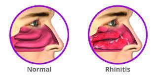 allergic rhinitis ICD 10.