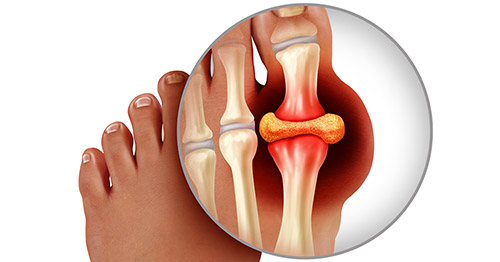 what does gout feel like